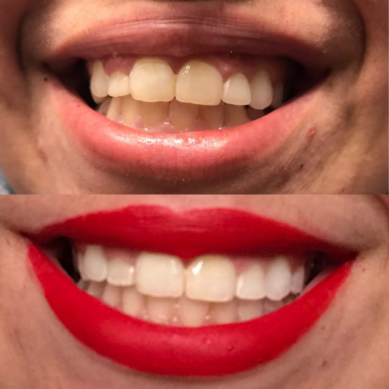 teeth whitening smile brilliant before and after